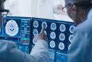 Radiologijos vieta onkologijoje – atrasti, vertinti, gydyti